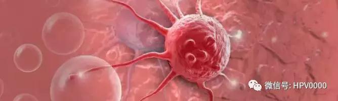 得了这些癌症不用怕,ctDNA早期癌症基因检测及早发现可以治愈
