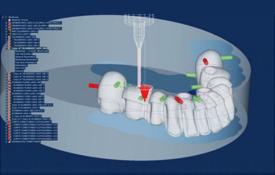 Dental Repair Material-运怡(北京)医疗器械有限公司